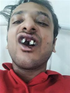 This image has an empty alt attribute; its file name is Abhishek-Mangala-lost-teeth-in-assault-by-Hindu-extremists-in-Sohna-Haryana-state-India-on-Sept.-22-2019.-Morning-Star-News-225x300.jpg