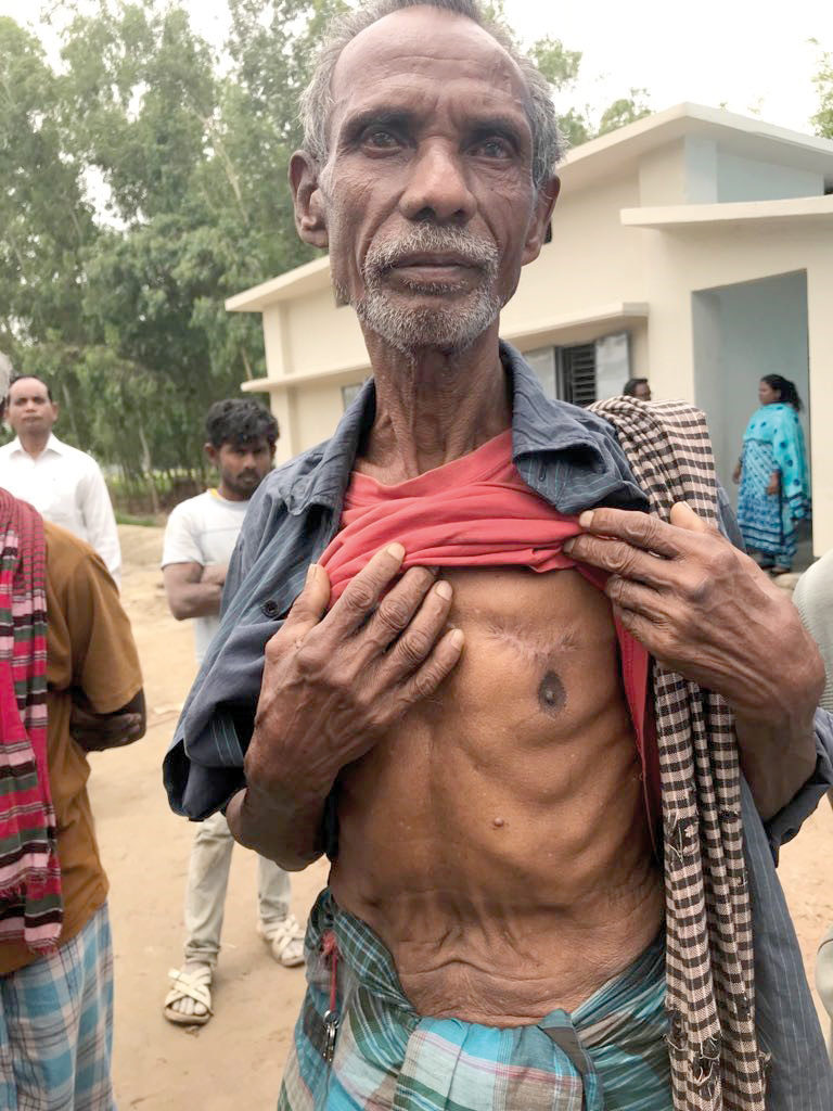 Dijen Tadu still bears the scars from when he was shot in the chest on the night of 6 November 2016